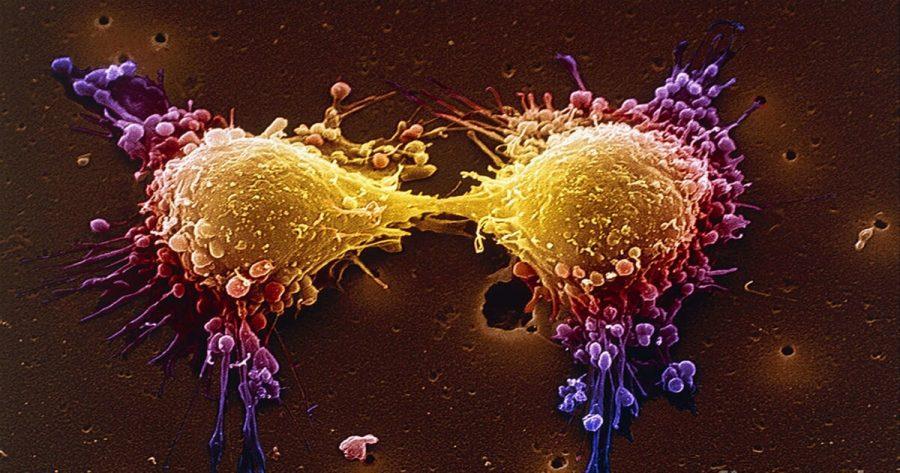 cancer de prostata hormonorezistent papillomavirus transmission obligatoire
