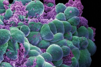 cancer triplu negativ noutati