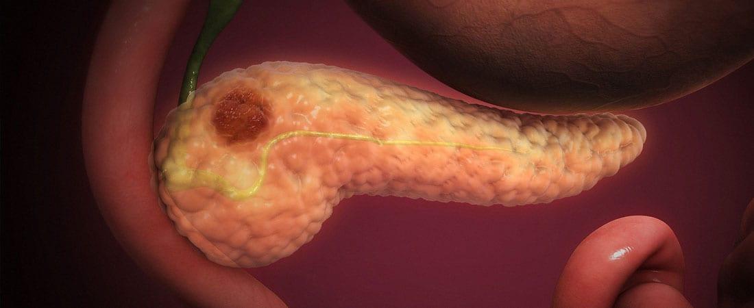 Semnele timpurii ale cancerului pancreatic