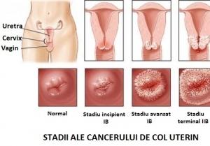 cancerul de col uterin doare