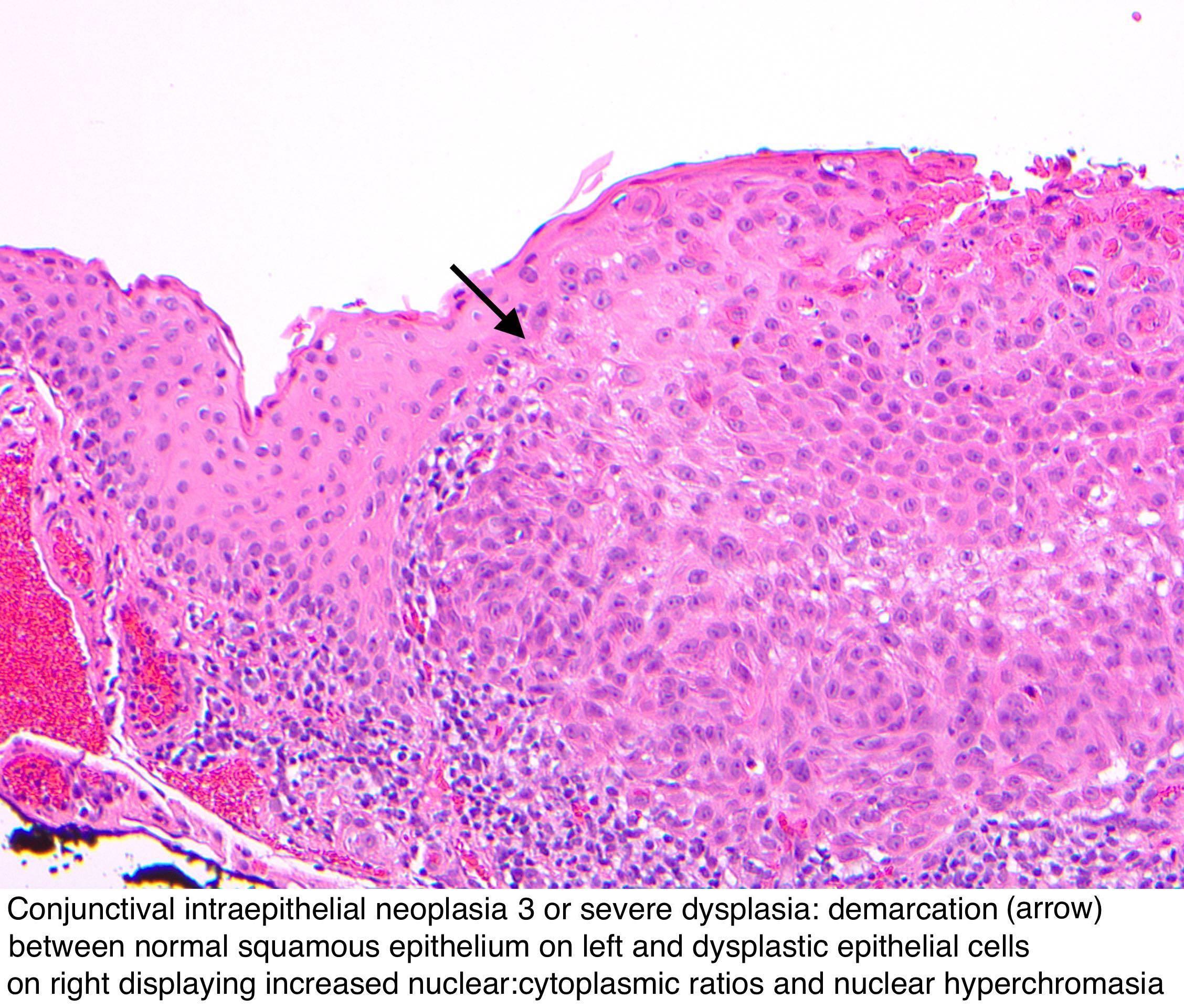 conjunctival papilloma pathology
