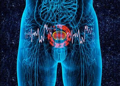 cancer maligne vessie hpv gardasil biverkningar