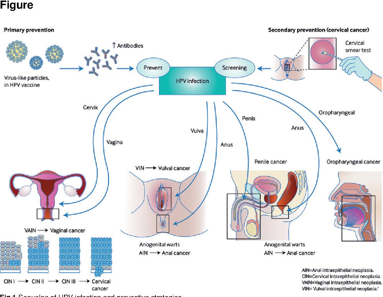 human papillomavirus infection nhs