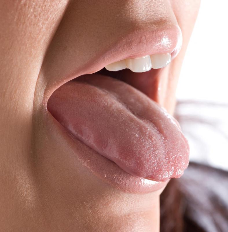 genital warts on tongue treatment papilloma vescica femminile