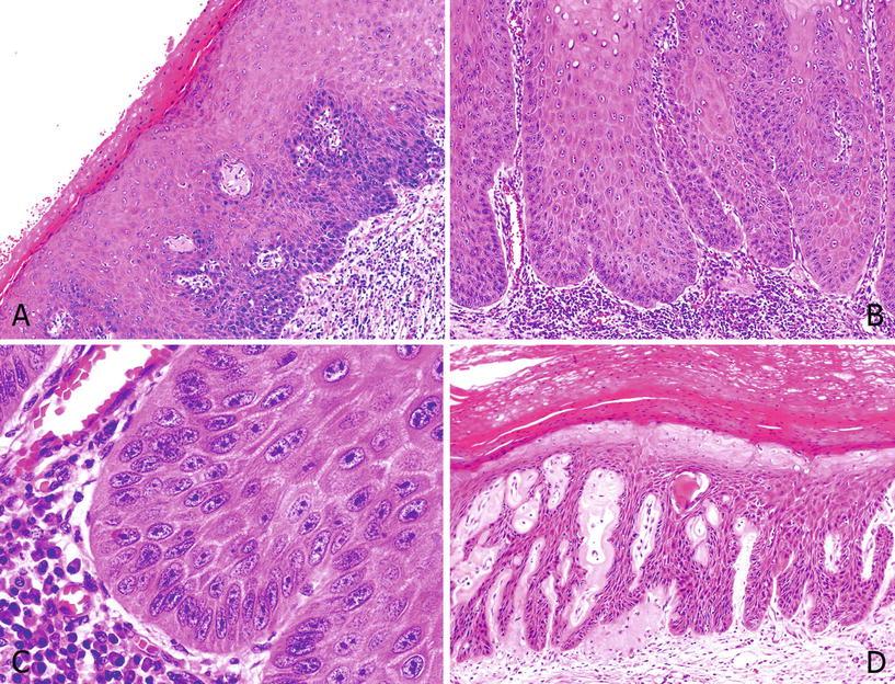 hirsutoid papillomas histology virus hpv no utero