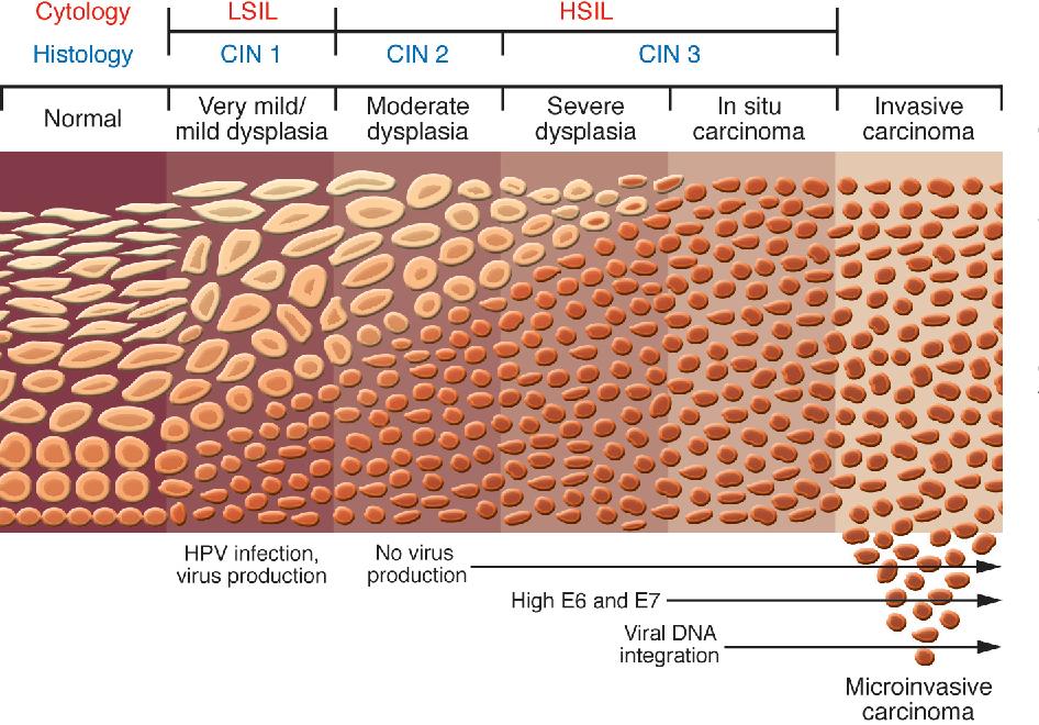 hpv causes cervical lesions detoxifierea organismului cu hrisca