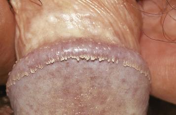 papilloma virus perche vaccinare i maschi