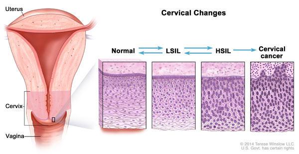 hpv that causes precancerous cells papilloma virus e saliva