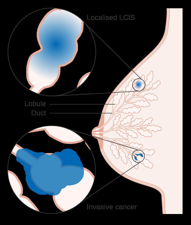 parazitii intestinali bambini oxiuros y tratamiento
