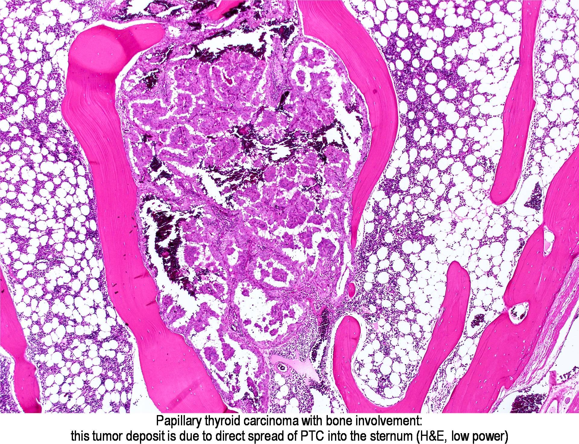 papillary thyroid cancer in bones