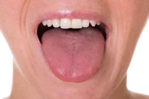 papilloma sulla lingua sintomi ce este cancerul in gat