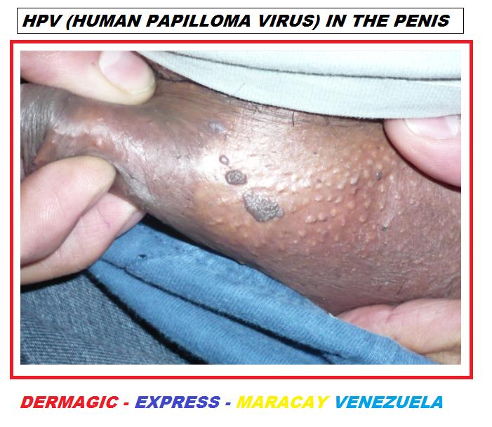papilloma virus hpv