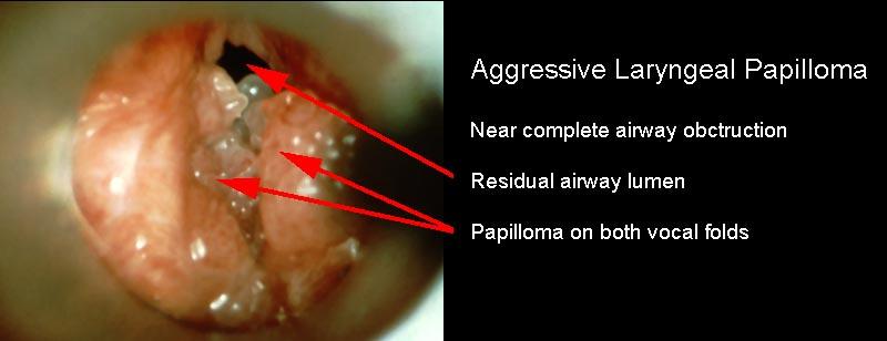 papillomatosis upper airway