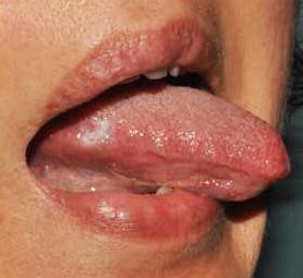 papillomavirus bocca