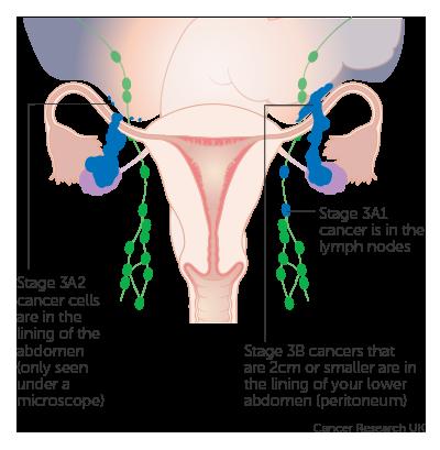peritoneal cancer fundraiser
