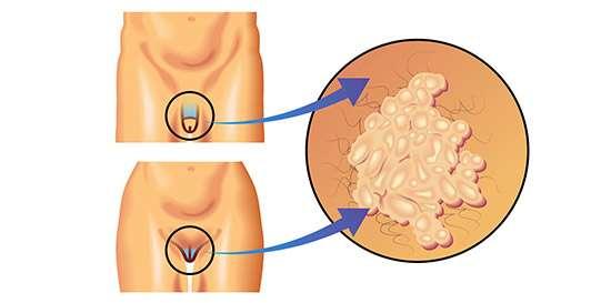 quien trata el virus del papiloma humano en hombres