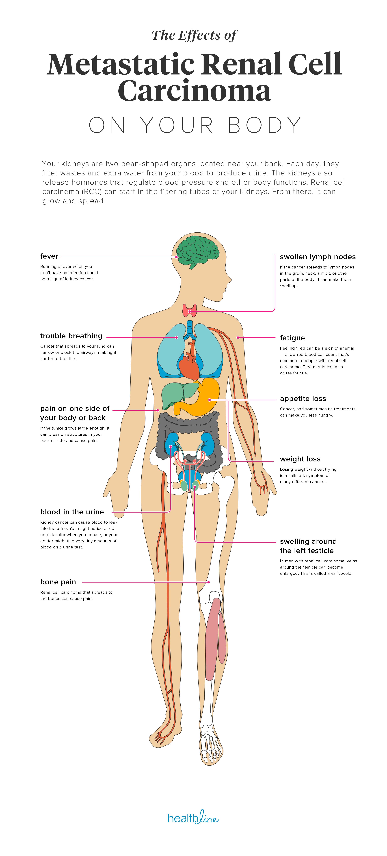 renal cancer back pain human papilloma virus hpv