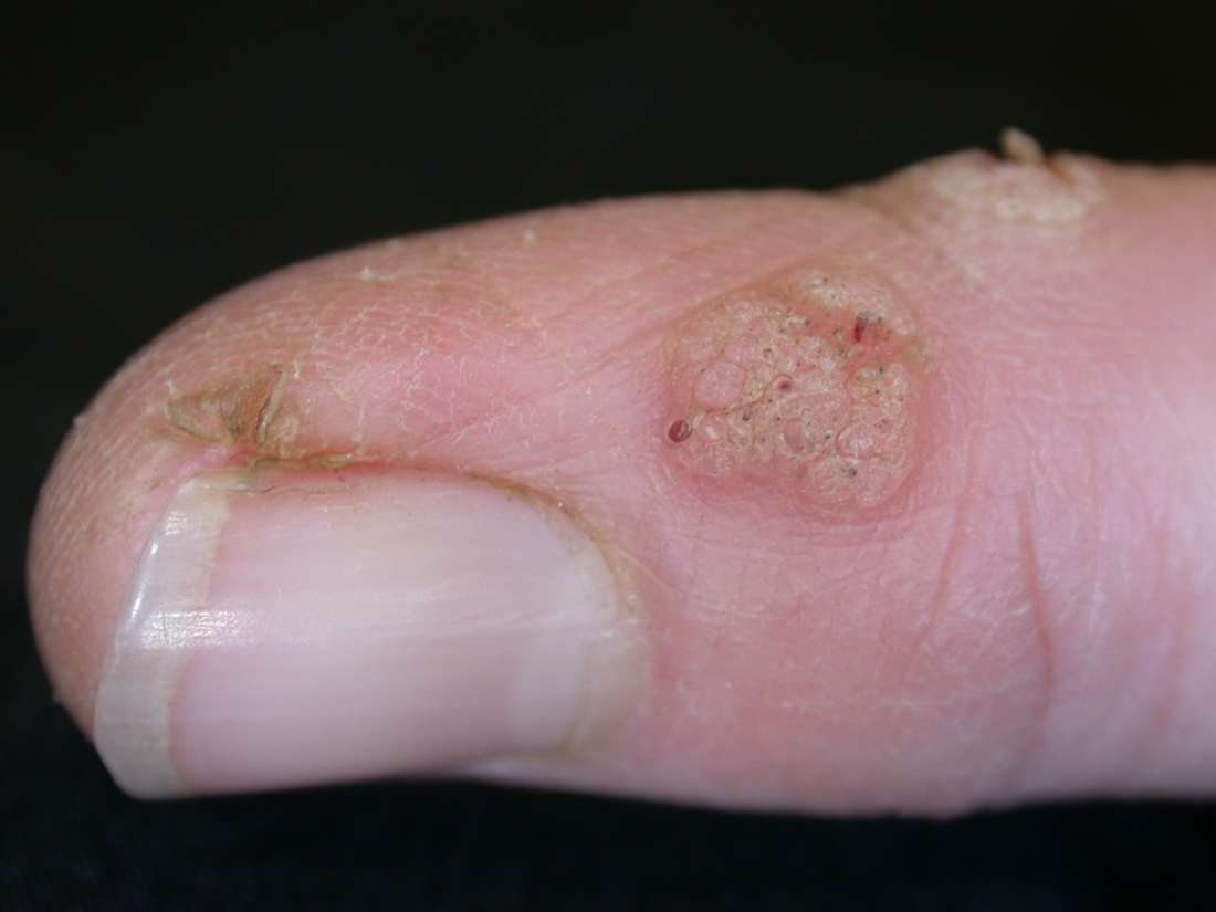 warts on hands early stages