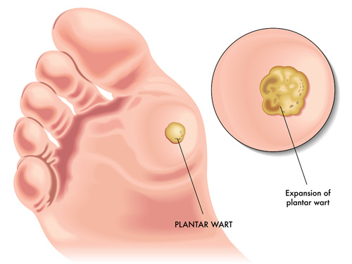 does all hpv cause cancer hpv impfung aok
